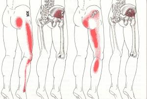 坐骨神経痛の説明図2